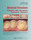 Dental Erosion: Diagnosis, Risk Assessment, Prevention, Treatment