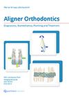 Aligner Orthodontics: Diagnostics, Biomechanics, Planning, and Treatment