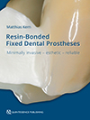 RBFDPs: Resin-Bonded Fixed Dental Prostheses
