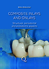 Composite Inlays and Onlays: Structural, Periodontal, and Endodontic Aspects
