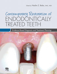 Contemporary Restoration of Endodontically Treated Teeth: Evidence-Based Diagnosis and Treatment Planning