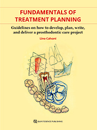 Fundamentals of Treatment Planning: Guidelines on How to Develop, Plan, Write, and Deliver a Prosthodontic Care Project