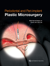 Periodontal and Peri-implant Plastic Microsurgery: Minimally Invasive Techniques with Maximum Precision