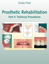 Prosthetic Rehabilitation. Part II: Technical Procedures