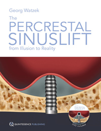 The Percrestal SinusliftFrom Illusion to Reality (Book/DVD-ROM set)