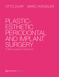 Plastic-Esthetic Periodontal and Implant Surgery: <i>A Microsurgical Approach</i>
