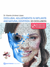 Occlusal Adjustments in Implants and Natural Dentition: 3D Occlusion (Book/DVD set)
