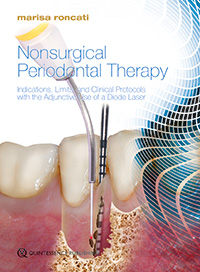 Nonsurgical Periodontal Therapy<br>Indications, Limits, and Clinical Protocols with the Adjunctive Use of a Diode Laser