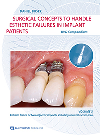 Surgical Concepts to Handle Esthetic Failures in Implant Patients<br><br>